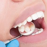 Zubný kaz si vyžaduje včasnú liečbu